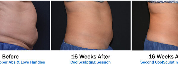 3 Picture Before and Afters for CoolSculpting Orlando-2