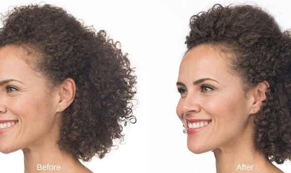 botox-before-after-bella-vita-medspa-5