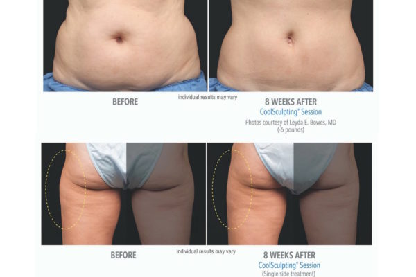 coolsculpting+Aesthetic+Med+Studio+before+and+after