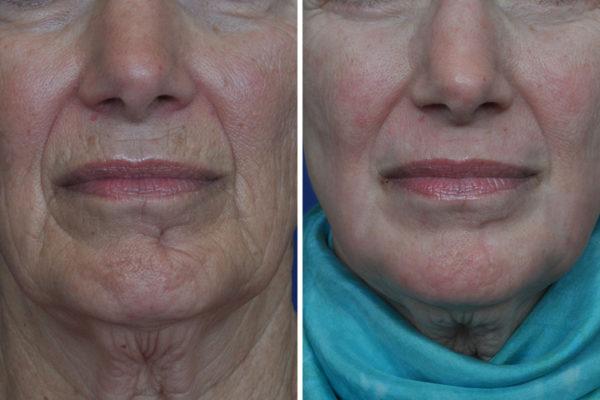 laser-skin-resurfacing-1