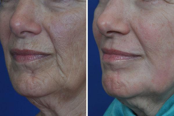 laser-skin-resurfacing-2