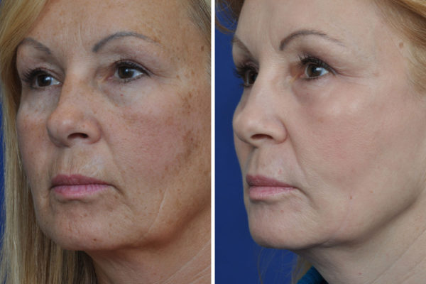 laser-skin-resurfacing-7